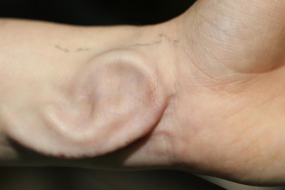 oreille chirurgie parotide Parotidéctomie Bruxelles